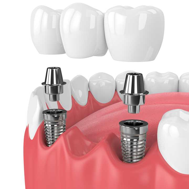 Bridge on Implants - square