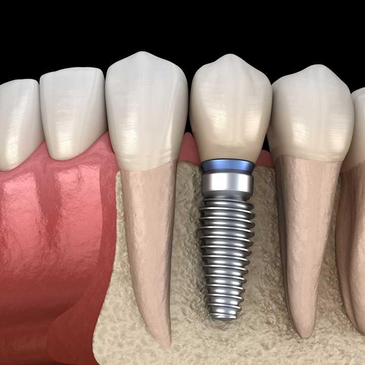 Implant - square