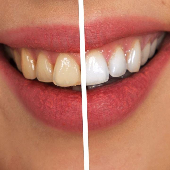 Dentist Professional Teeth Whitening DentoBeauty Grays Essex