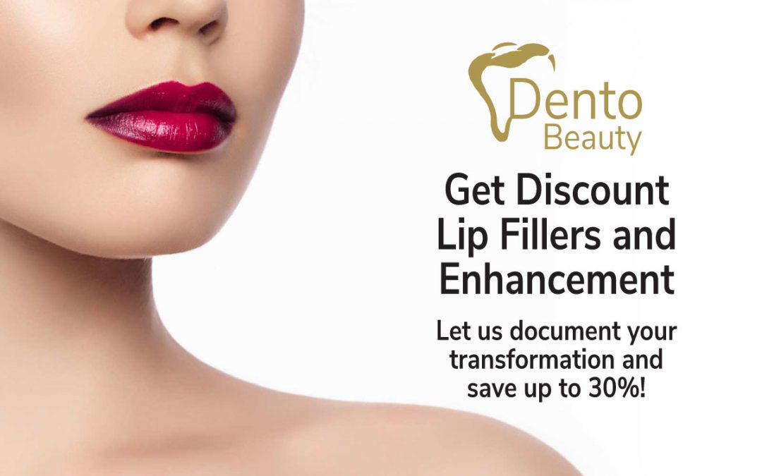 Save up to 30% on Lip Fillers and Enhancement at DentoBeauty, Grays
