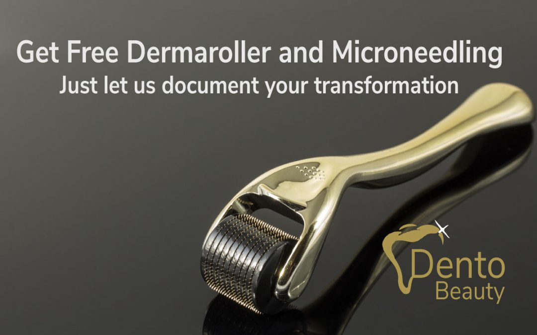Get Free Dermaroller and Microneedling at DentoBeauty, Grays