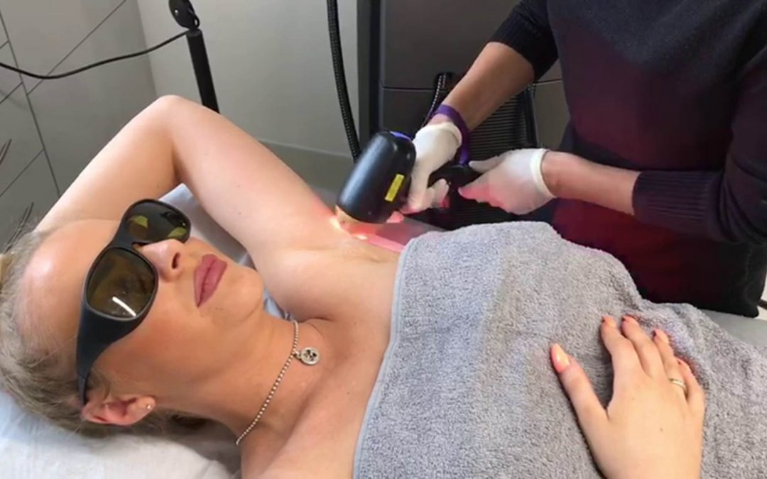 Instagram Star Has Laser Hair Removal at DentoBeauty